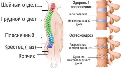 позвоночник-остеохондроз