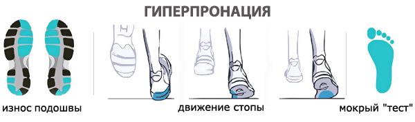 3-гиперпронация