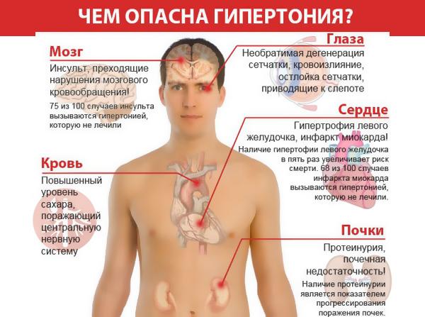 гипертония-опасна