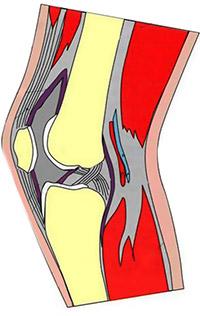 плохое-кровоснабжение-колена